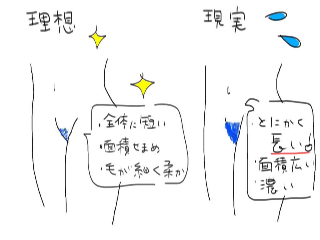 理想のVIO